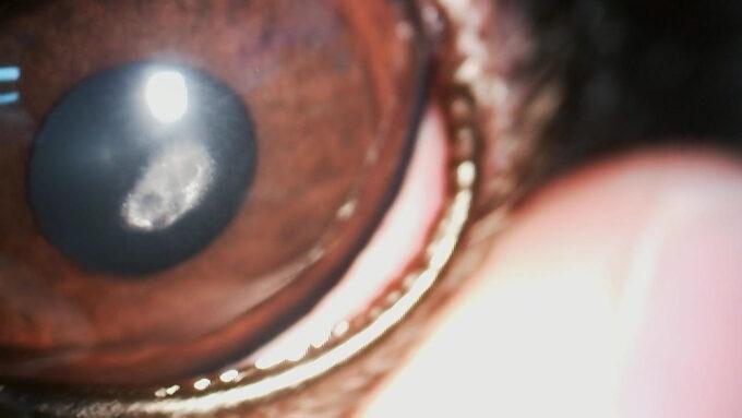 角膜結晶沈症