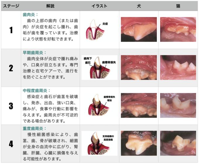 歯周病の診断